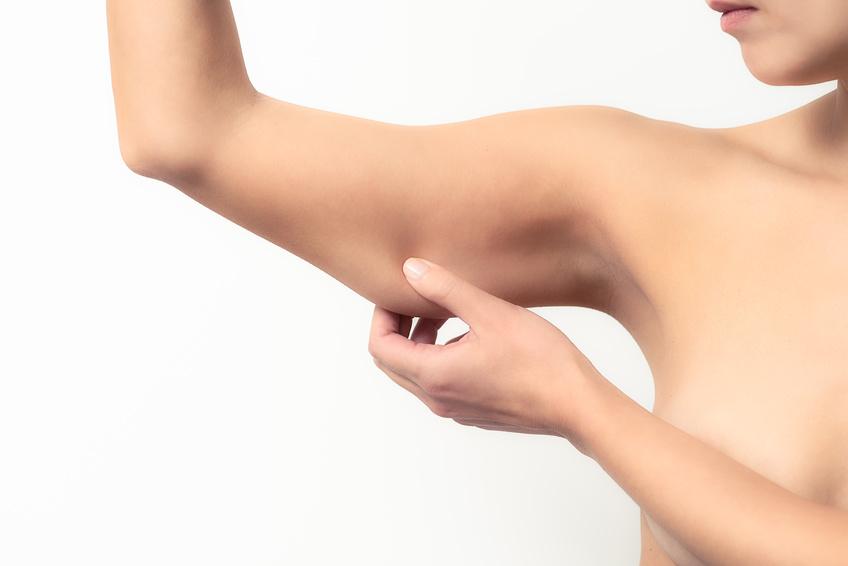 lifting des bras, chirurgie de la silhouette, docteur franck falkenrodt, bordeaux
